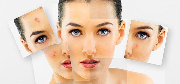Мифы о прыщах и правила ухода за проблемной кожей